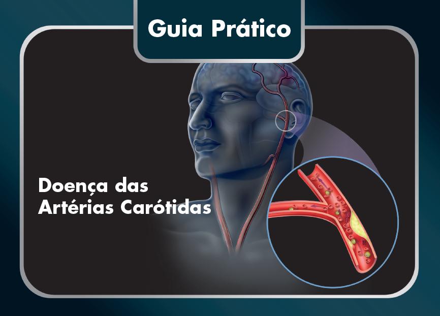 Doença das Artérias Carótidas